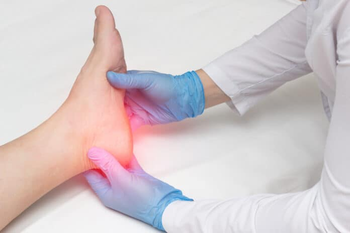 Doctor examines the leg of the woman's heel for heel spurs, pain in the foot, plantar fasciitis, orthopedist