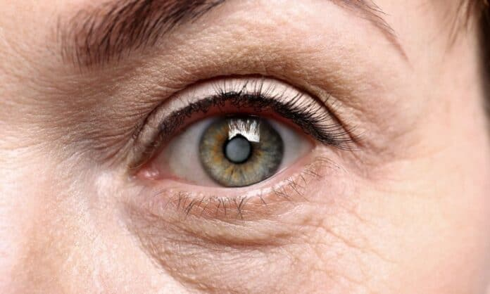 Most Common Geriatric Eye Diseases